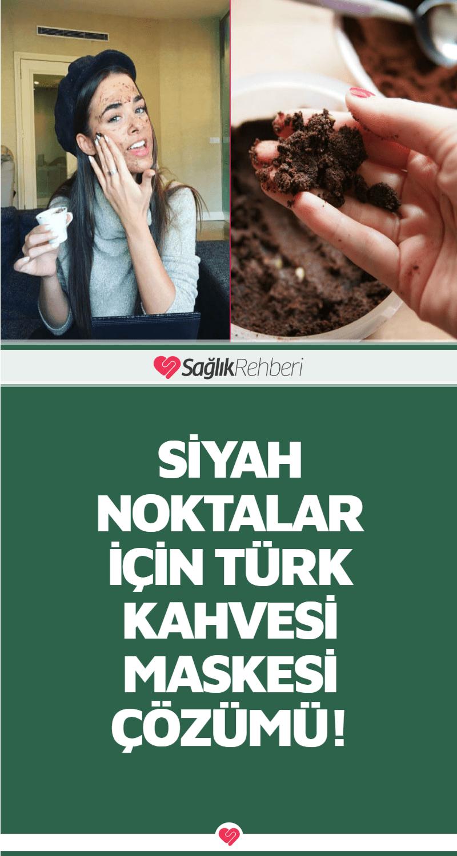 Siyah Noktalar İçin Türk Kahvesi Maskesi Çözümü!